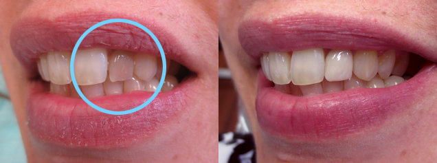 Discolored tooth due to root canal