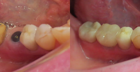 Missing tooth implant crown