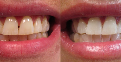 Sparta NJ teeth whitening