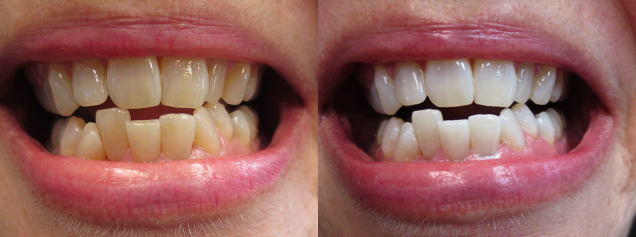 Zoom teeth whitening in Sparta, NJ